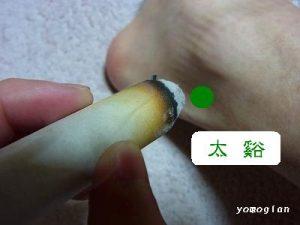 足のツボに棒灸 足のツボに棒灸をしているところです。