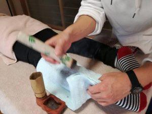 棒灸の施術